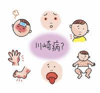 川崎病ってどんな病気? 六つの症状 後遺症で動脈瘤も 子どもの体 元気ガイドby県小児科医会