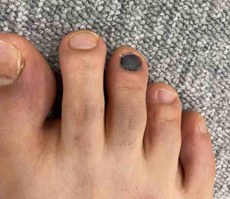 内出血 ぶつけ に ない て の 足の内出血の原因や病気と傷みや腫れ等の症状!痛くない時は?