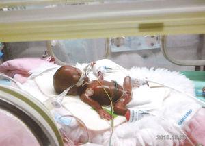 258グラムで出生、退院へ