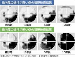 緑内障の進行が遅い例、早い例の視野検査結果
