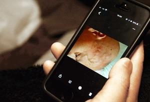 抗がん剤治療中に、英二さん(仮名)がスマートフォンで撮影した自身の写真。「死の恐怖で眠れなかった」と振り返る=4月、福井県福井市内