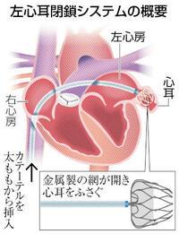 心耳ふさいで血栓予防 脳梗塞防ぐ新デバイス 健康まっぷ