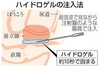ゲルで直腸の照射量低減 前立腺がんの放射線治療 健康まっぷ