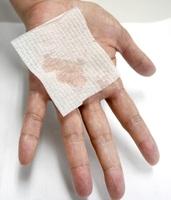 ガーゼに水分がにじむほど、多汗症に悩む患者の手のひら(福井赤十字病院提供)