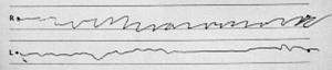 本態性振戦の患者が手で引いた線の筆跡(右手と左手)(福井赤十字病院提供)
