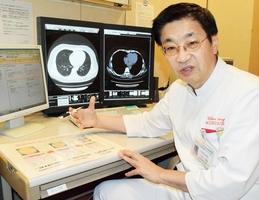 屋内全面禁煙の必要性を訴える小林弘明部長=福井市の県済生会病院