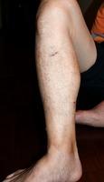 クマに襲われ、爪で引っかかれた男性の右足。すねやふくらはぎに痛々しい傷が残った=10月28日夜、福井県福井市稲津町