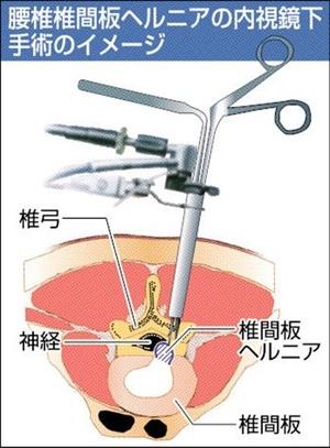 腰椎ヘルニア、内視鏡手術が主流に